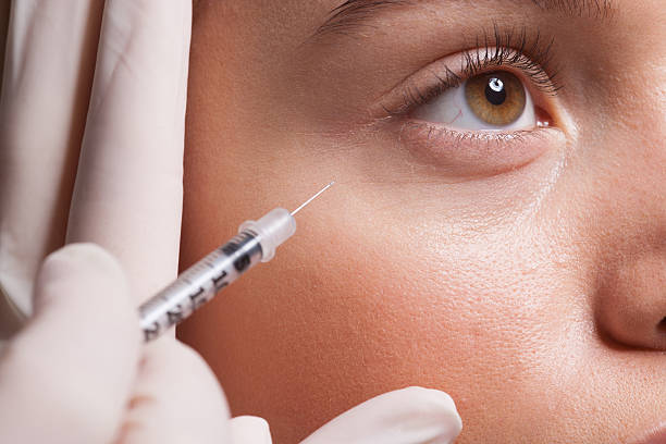 non-surgical eye lift