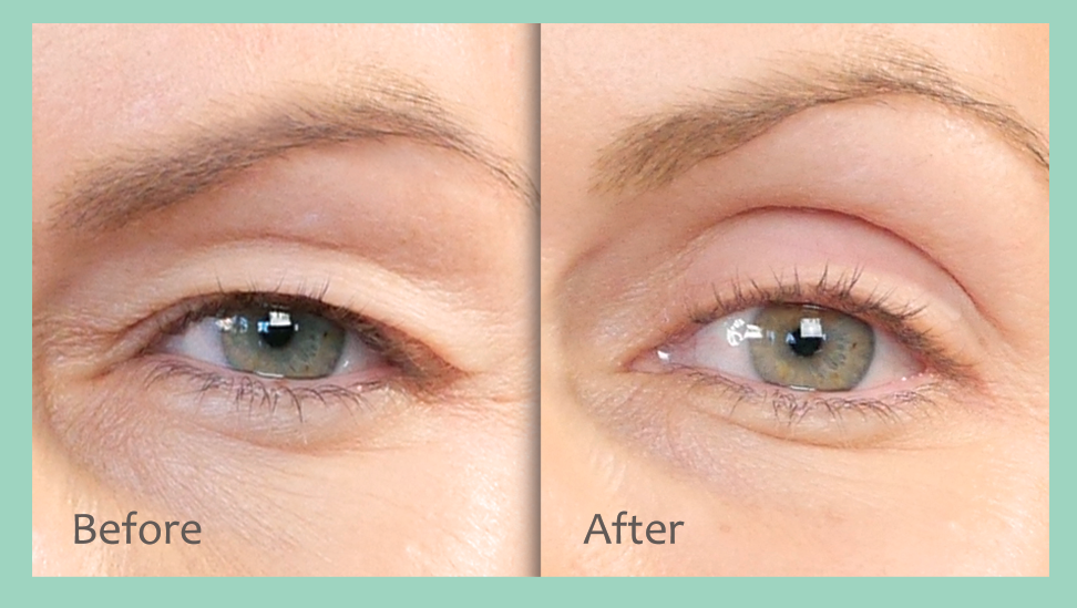 non-surgical eye lift before and after