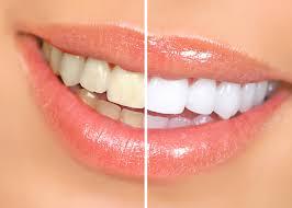 teeth whitening glasgow